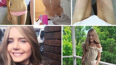 Девушка, победившая анорексию
