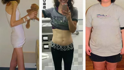 Полюбила свое тело и победила анорексию