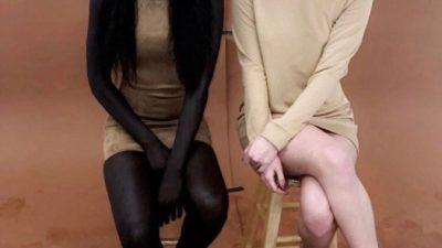 Над девушкой смеялись из-за её кожи, и она хотела её отбелить.