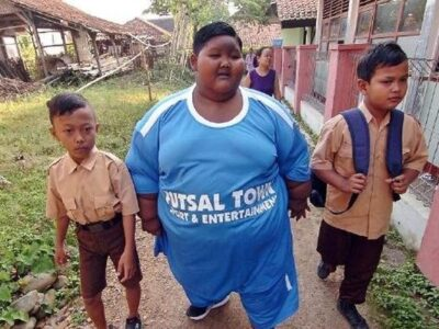 12-летний индонезийский подросток Арья Пермана похудел на 95 килограмм