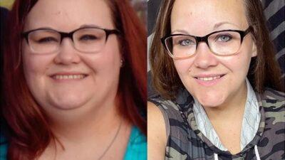 Результат на лицо: женщины после похудения на 40-80 кг