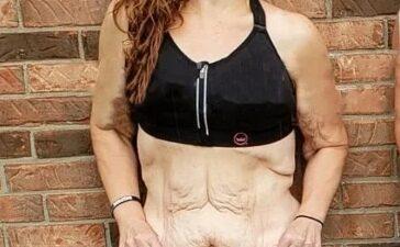 Побочные эффекты сильного похудения