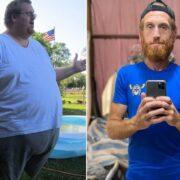 «Я думал, что умру»: мужчина из-за этого похудел на 150 кг, берегите совё здоровье!