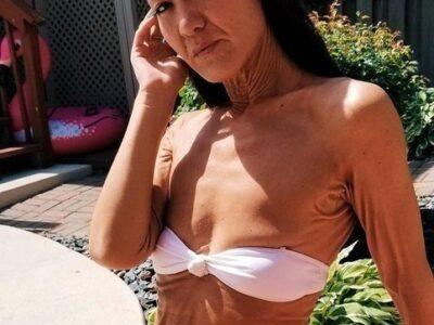 28-летняя модель из Австралии с редким заболеванием кожи.