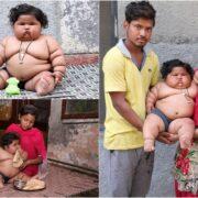 Восьмимесячная Чахат Кумар весит 17 килограммов — столько же, сколько средний ребенок в 4 года